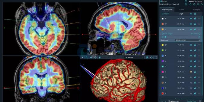 我国研发的神经外科手术机器人正式上市