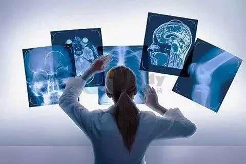 AI产品不应该局限于一家家医院推广